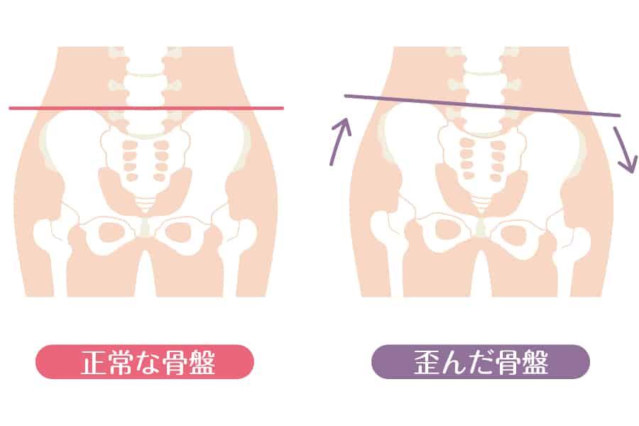 バストの左右差の原因4 歪みやすい女性の骨格