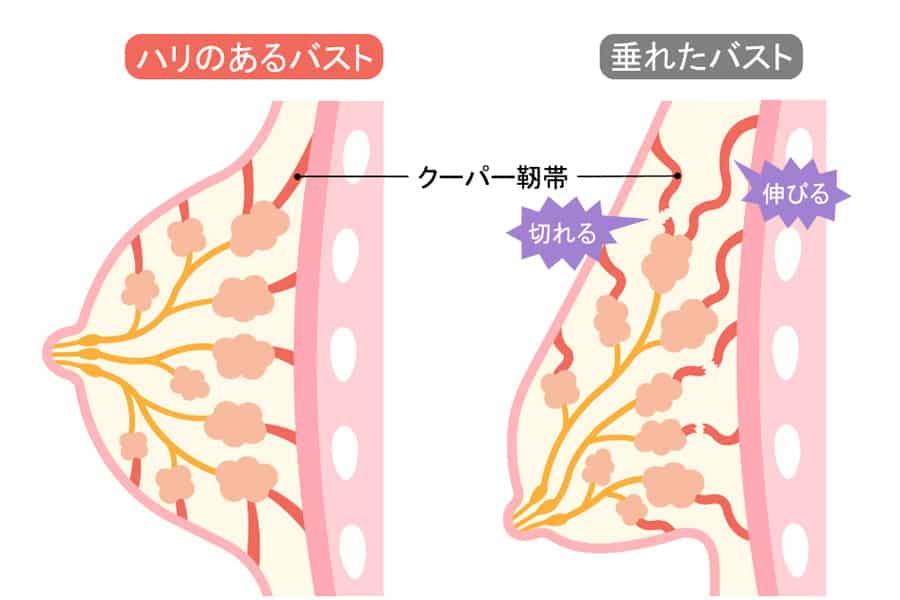 バストを支える命綱「クーパー靭帯」の正体