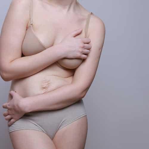 産後のバストにできたしわは垂れ対策で改善できる?